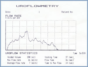Uroflowmetry - used to detect the deficinecy in urinary tract by ...